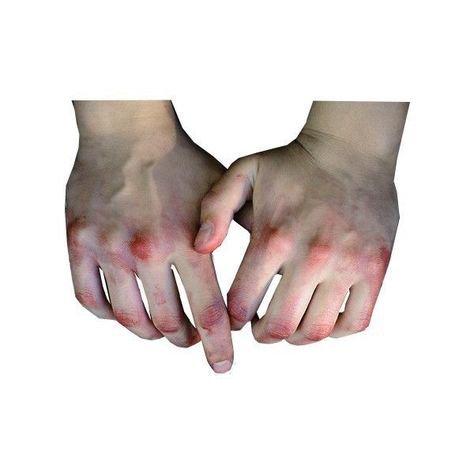 bruised hands png filler