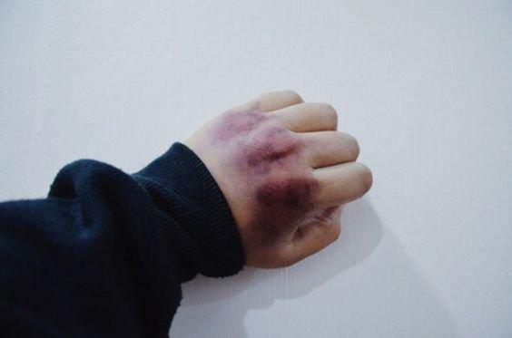 bruised knuckles