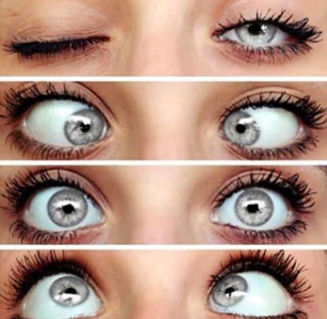 limbal ring gray eyes